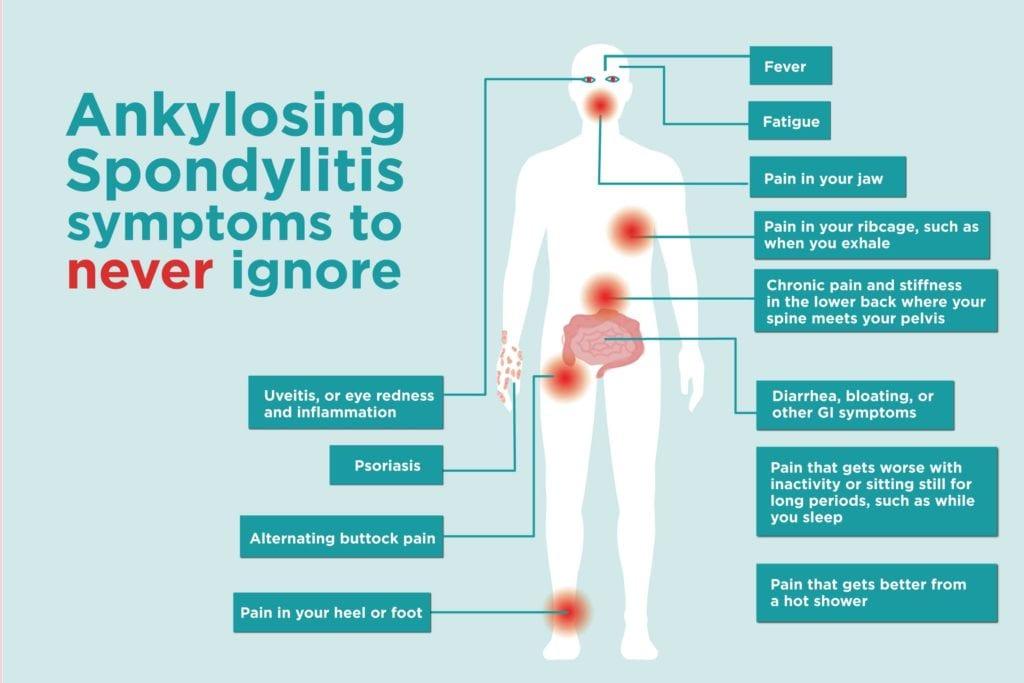 Common Ankylosing Spondylitis Signs And Symptoms-7101