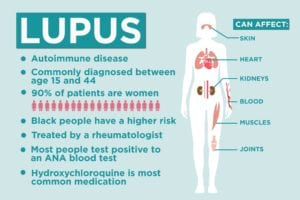 Lupus Facts: 17 Things to Know About Lupus