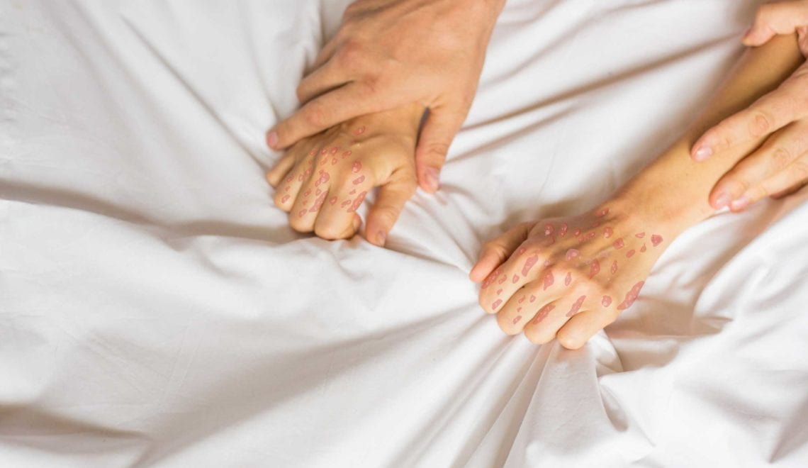 How Psoriasis Affects Sexual Function