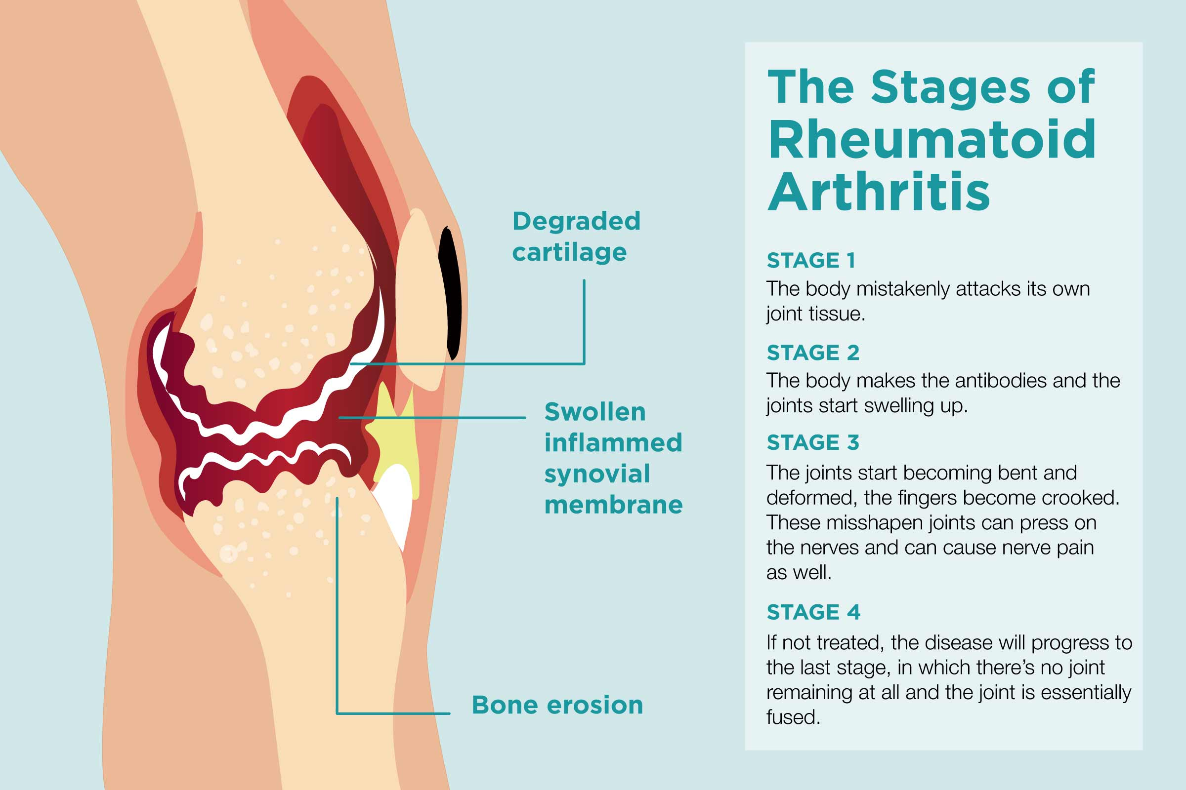Rheumatoid Arthritis Stages And Progression