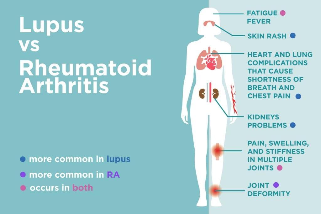 Lupus vs  Rheumatoid Arthritis: What's the Difference? – CreakyJoints