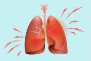 arthritis in lungs