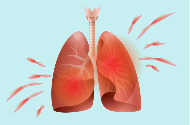 How Arthritis Affects the Lungs