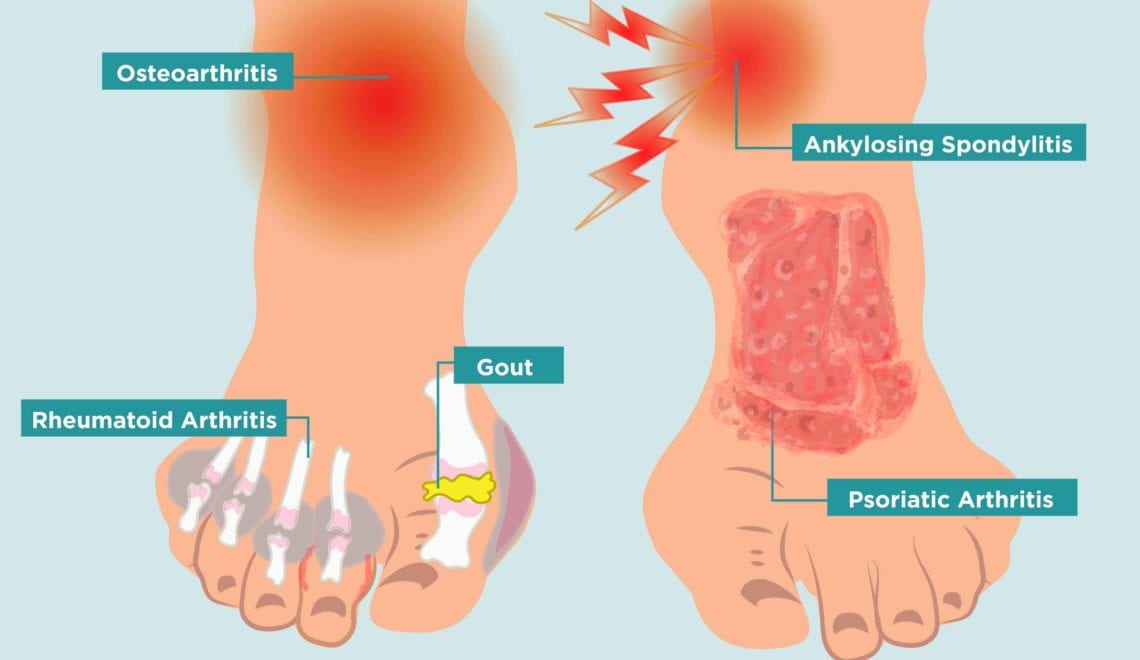 arthritis in your feet causes, symptoms, and treatment Headache Diagram