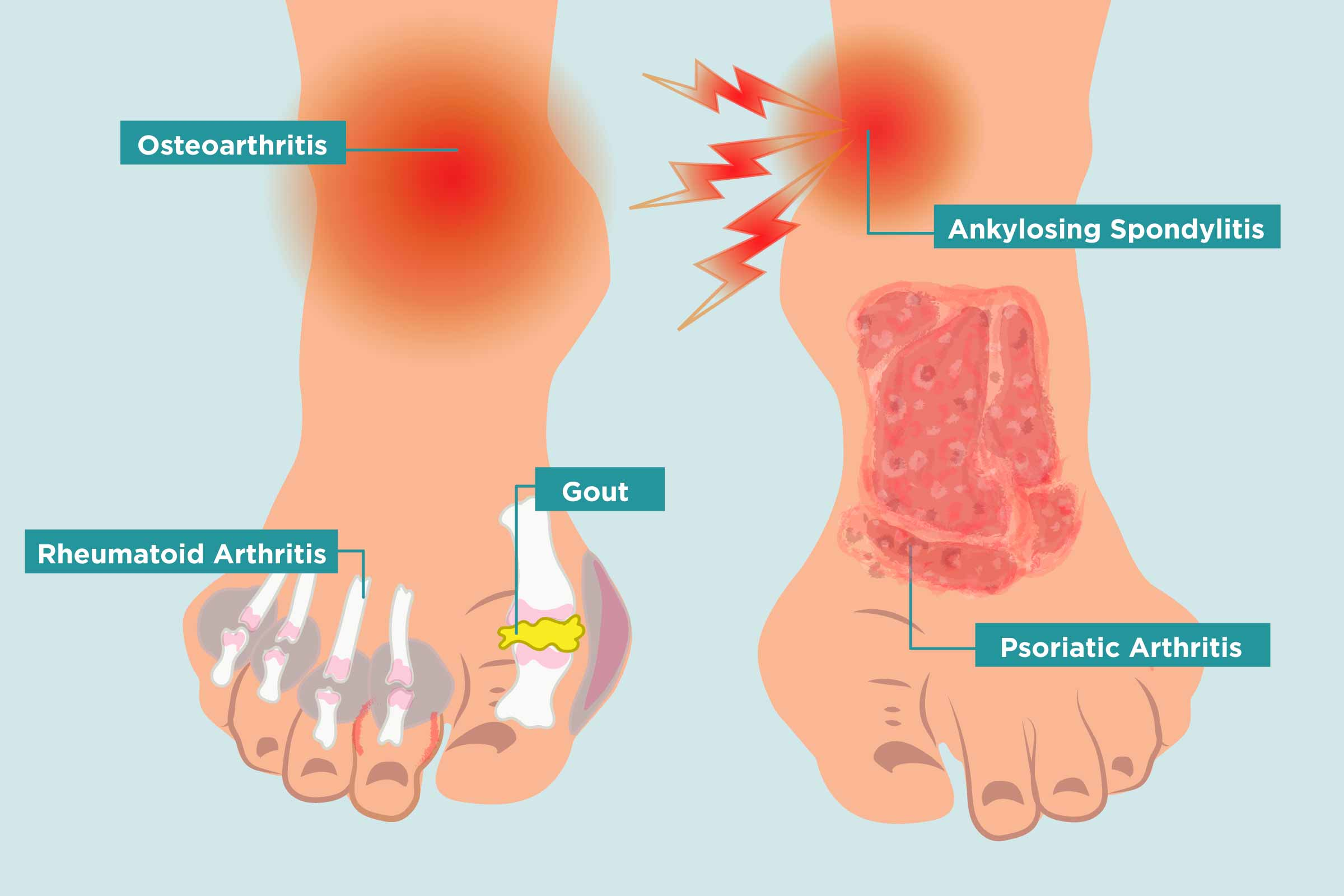 Arthritis in Your Feet Causes, Symptoms, and Treatment