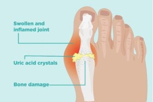 How Gout Causes Bone Damage