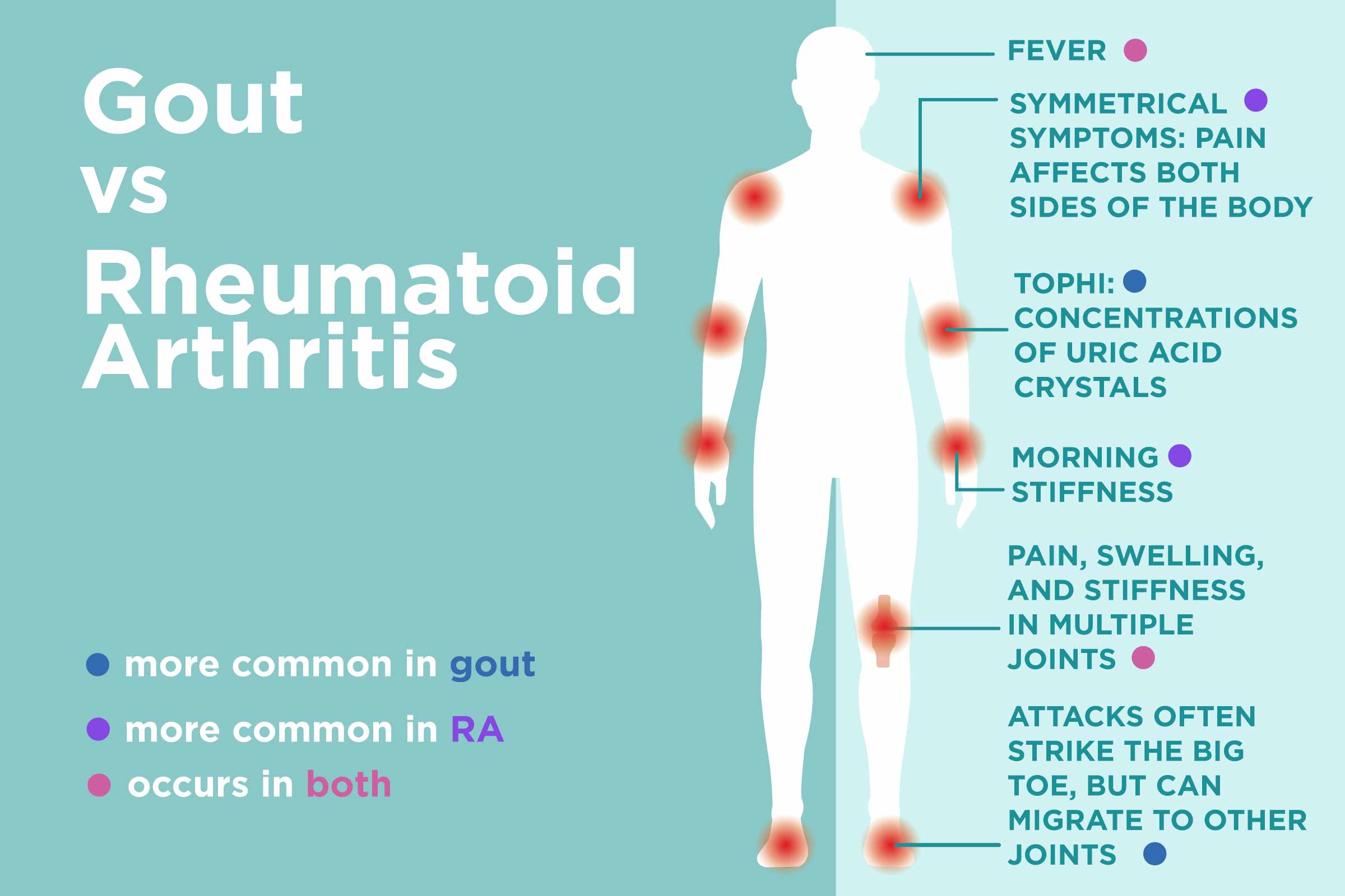 Gout Vs Rheumatoid Arthritis What S The Difference