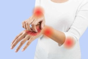 How to Prevent Psoriatic Arthritis