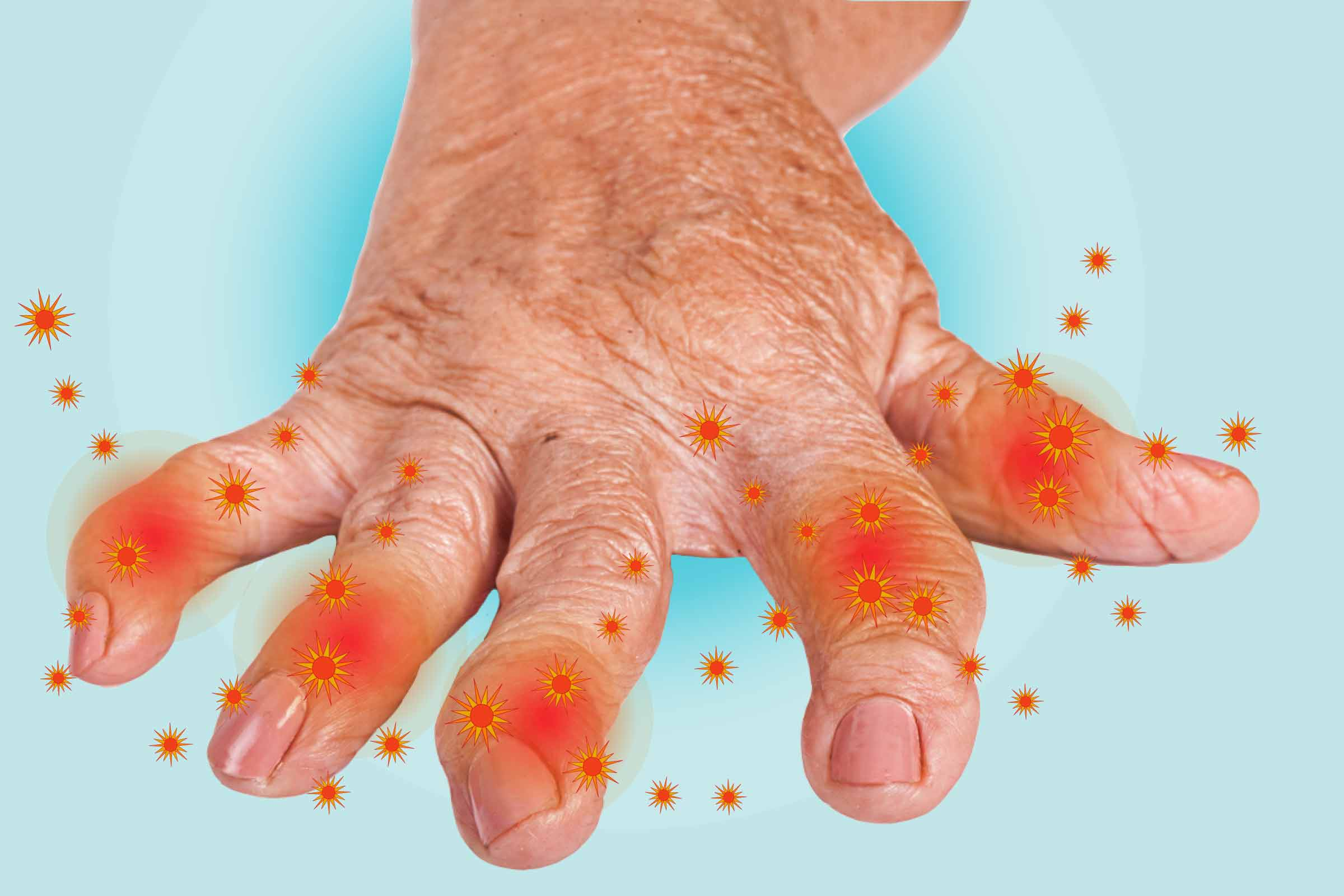 Osteoarthritis May Be As Painful And Disabling As Rheumatoid Arthritis