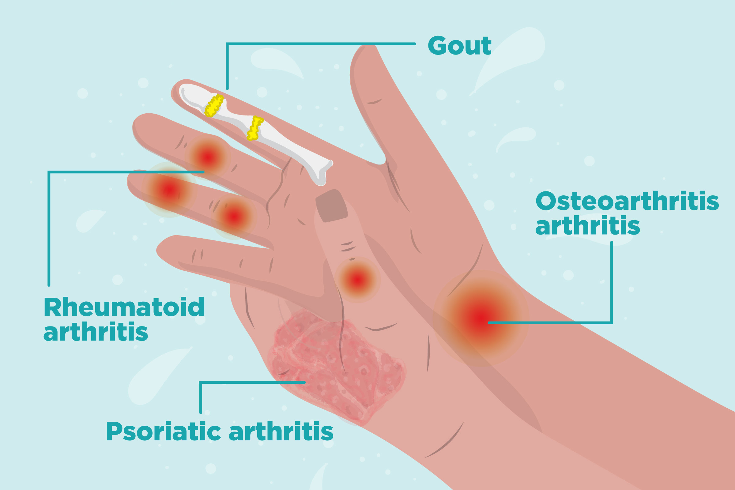 Arthritis in Hands Symptoms, Types of Hand Arthritis, and