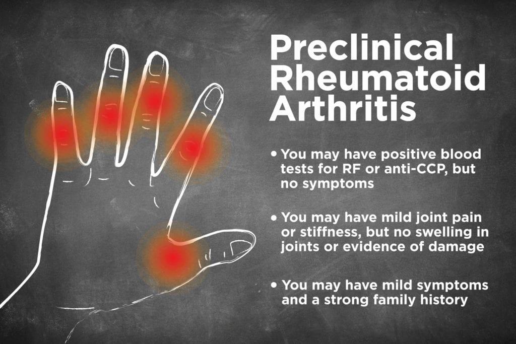 Preclinical Rheumatoid Arthritis What Is It
