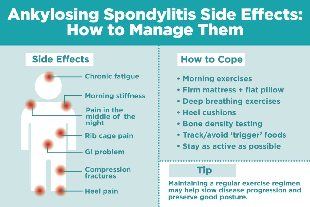 How to Manage Ankylosing Spondylitis Symptoms and Side Effects