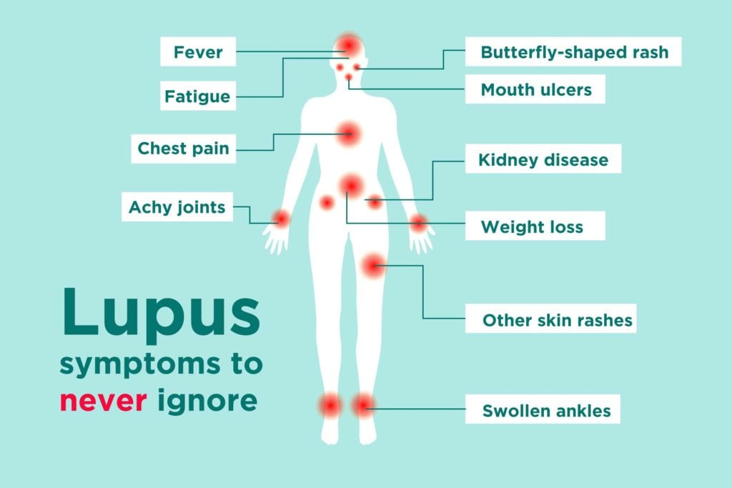 Lupus Signs and Symptoms: How to Tell If You Could Have Lupus