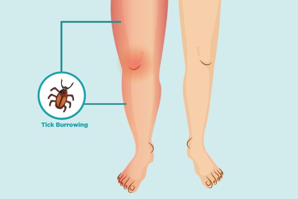 Lyme Arthritis: Symptoms and Treatment