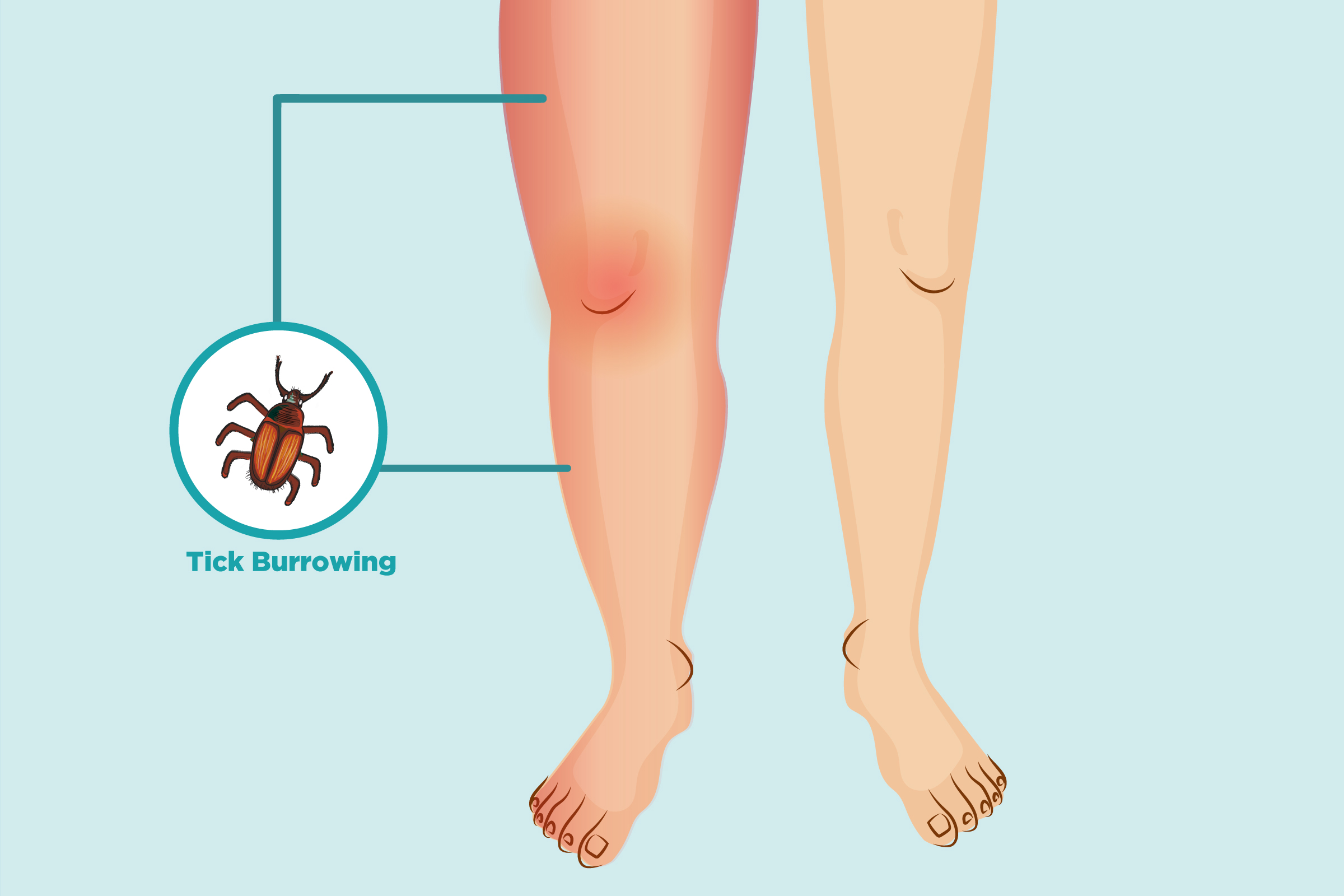 Lyme Arthritis: Symptoms and Treatment