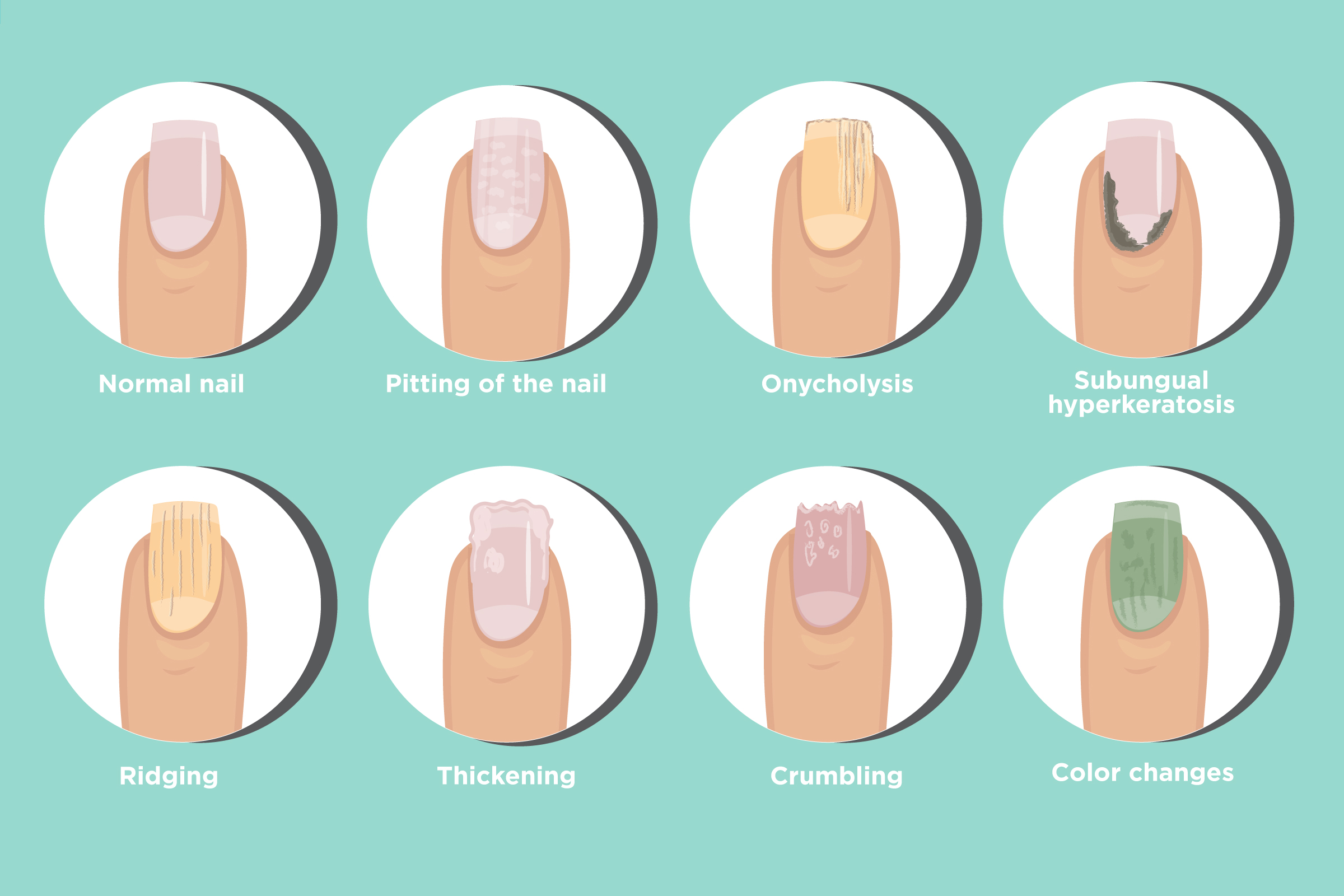 Psoriatic Arthritis Nail Changes: Symptoms and Treatments