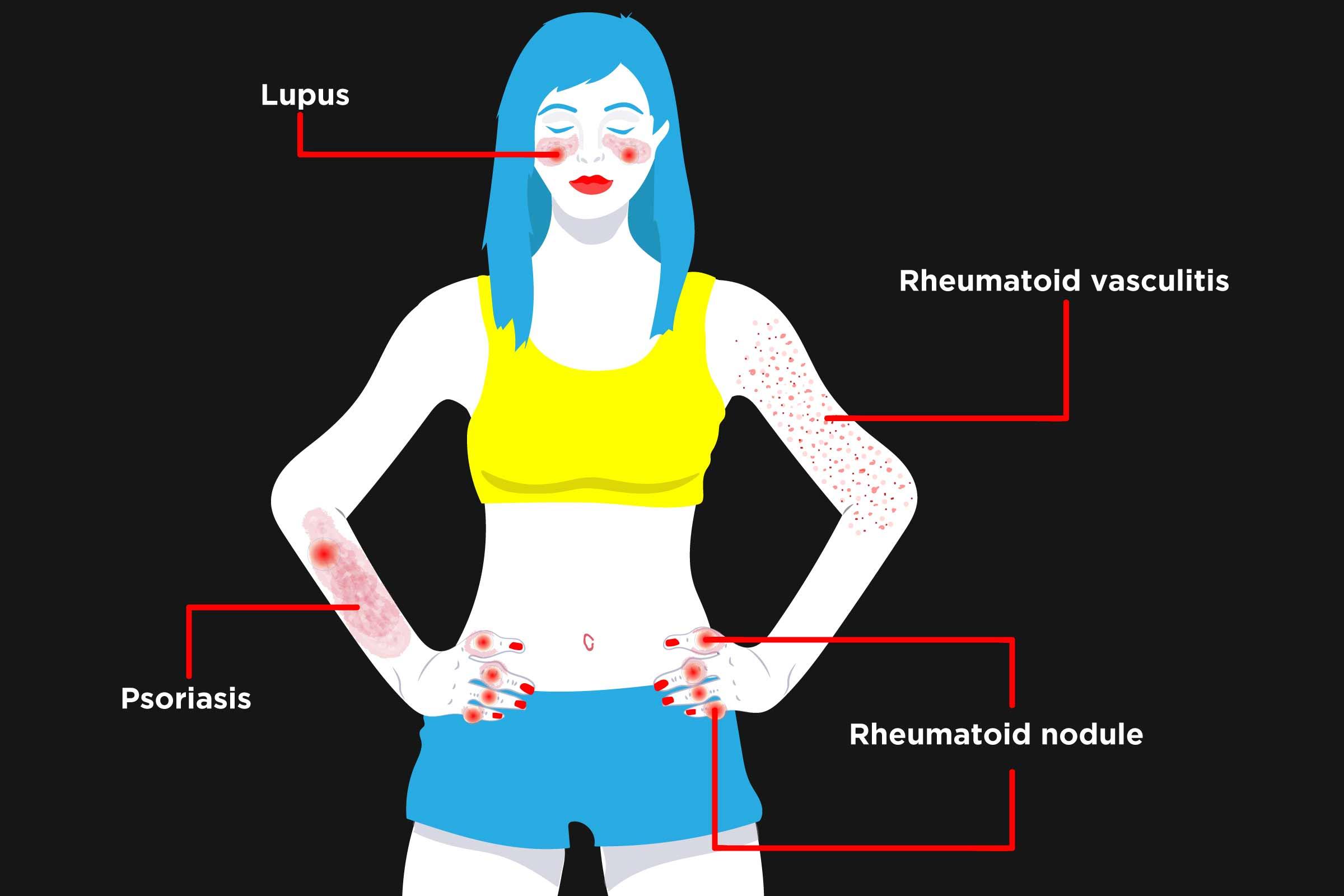 Rheumatoid Arthritis Rashes: Causes & Treatment - CreakyJoints