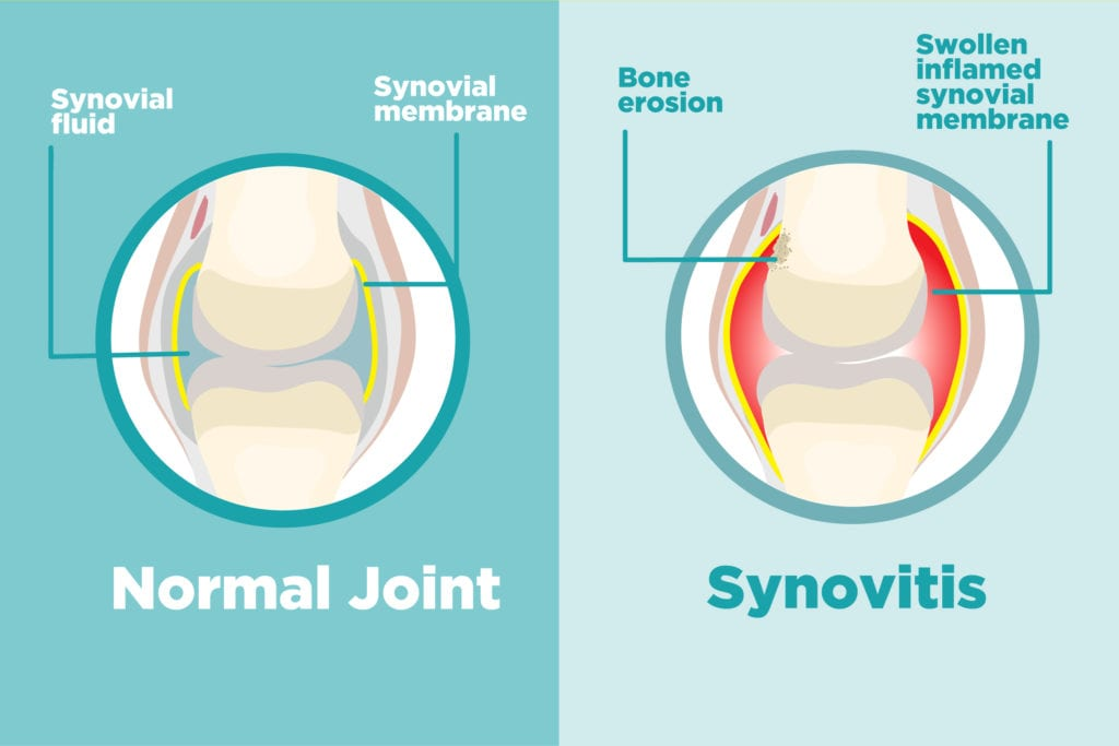 synovitis is medical-speak for inflammation in the synovium, the membrane  that lines your joints  in healthy joints, this protective tissue is only a  few