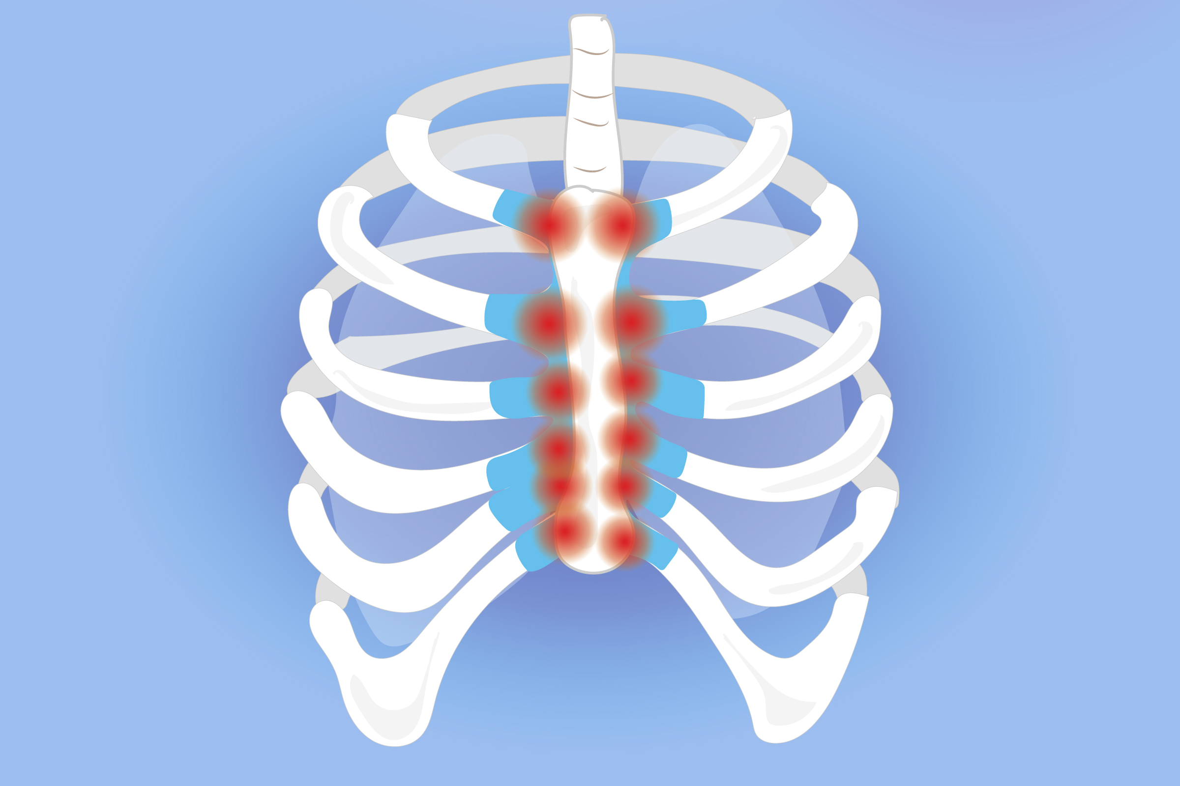 Pain sternum popping What Causes
