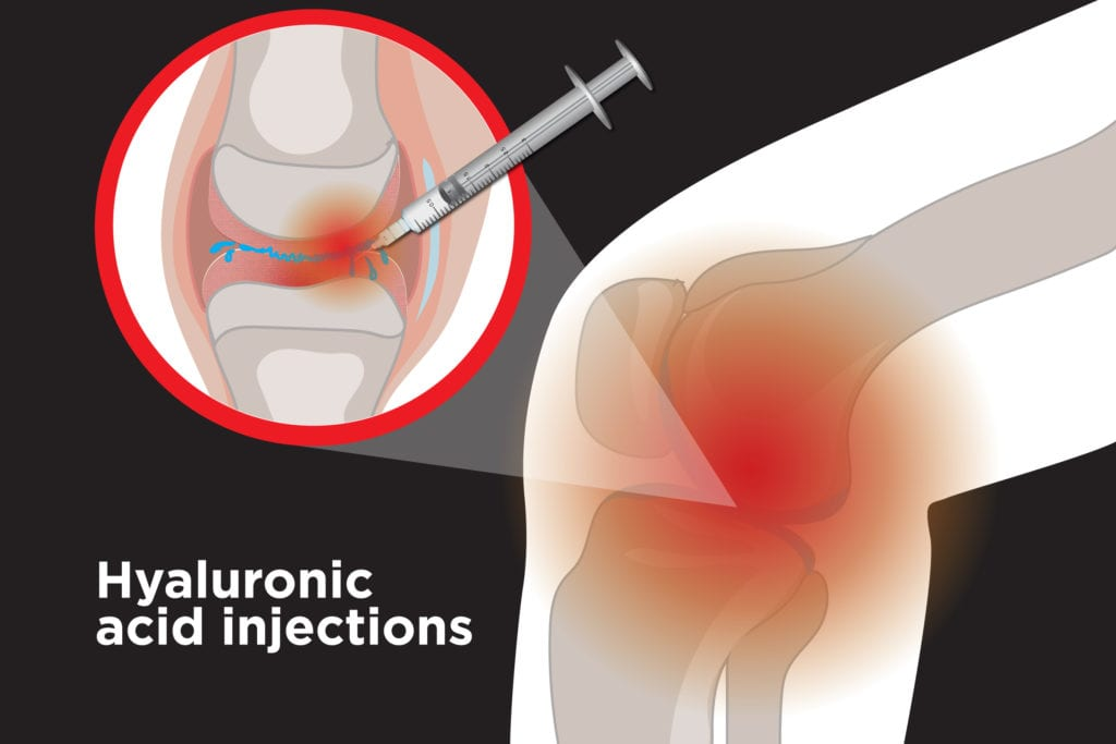 Hyaluronic Acid Injections: How Do They Treat Arthritis?