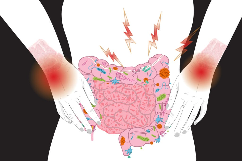 Can Bacteria In Your Gut Explain Your >> Gut Bacteria Changes Linked To Lupus Flares