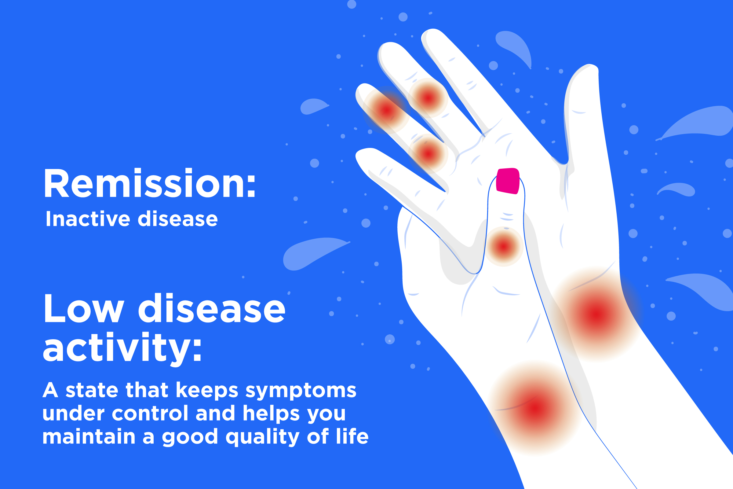 What Remission And Low Disease Activity In Rheumatoid Arthritis Means