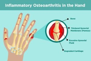 Inflammatory Osteoarthritis in Hands