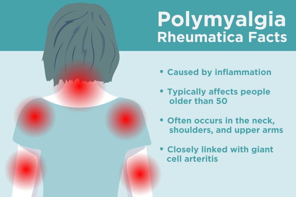 Polymyalgia Rheumatica Facts
