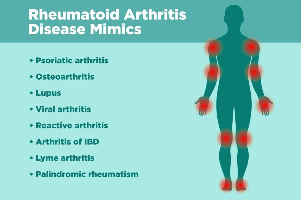 Diseases Rheumatoid Arthritis Can Be Misdiagnosed For