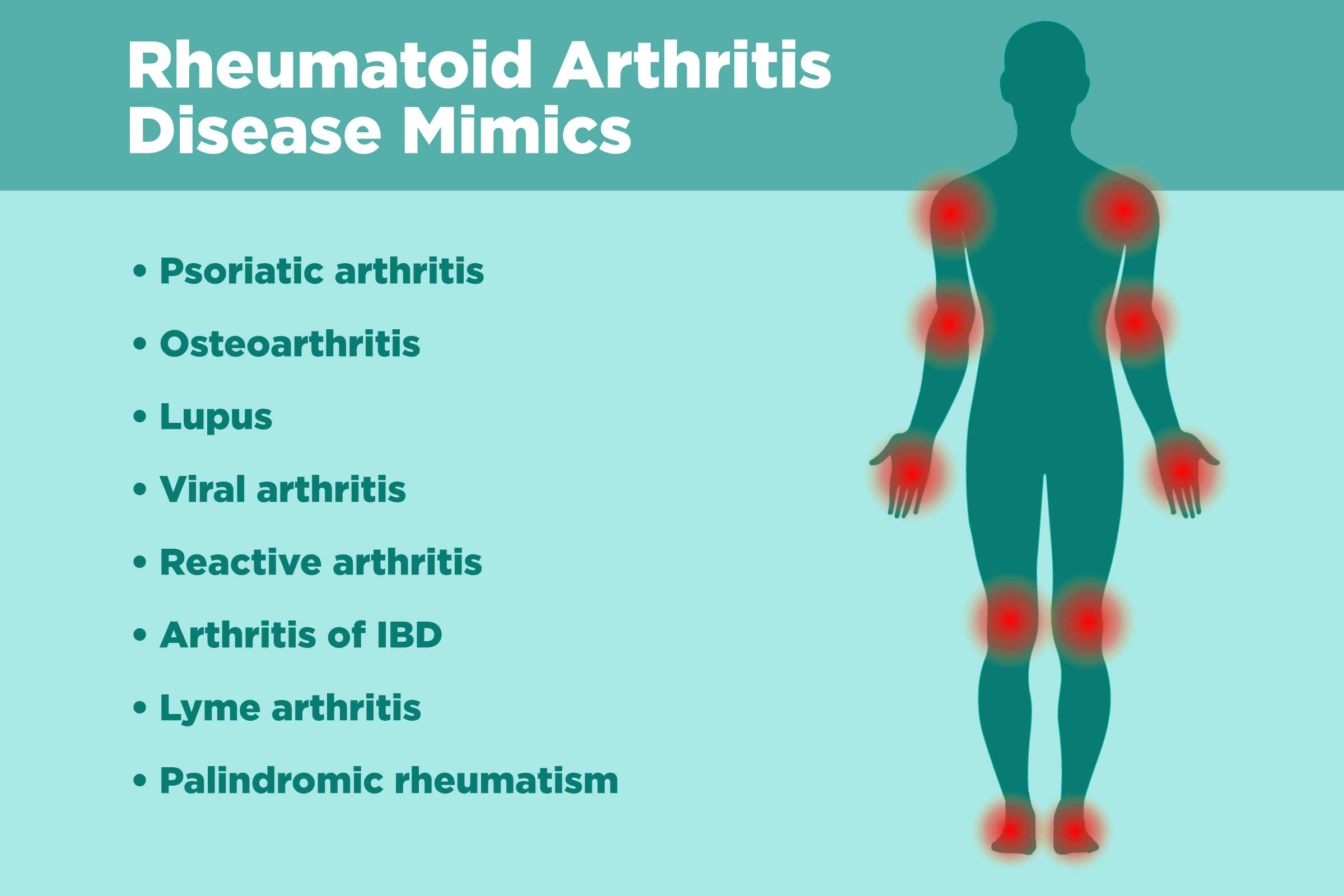 Diseases That Rheumatoid Arthritis Can Be Mistaken For