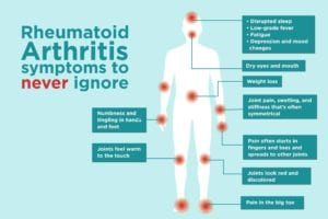 Rheumatoid Arthritis Symptoms to never ignore