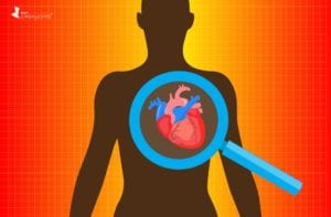 Heart Disease Risk in African Americans with Lupus