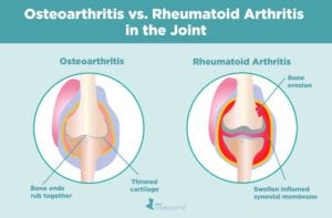 Osteoarthritis vs Rheumatoid in the Joint