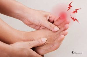 Gout Flare