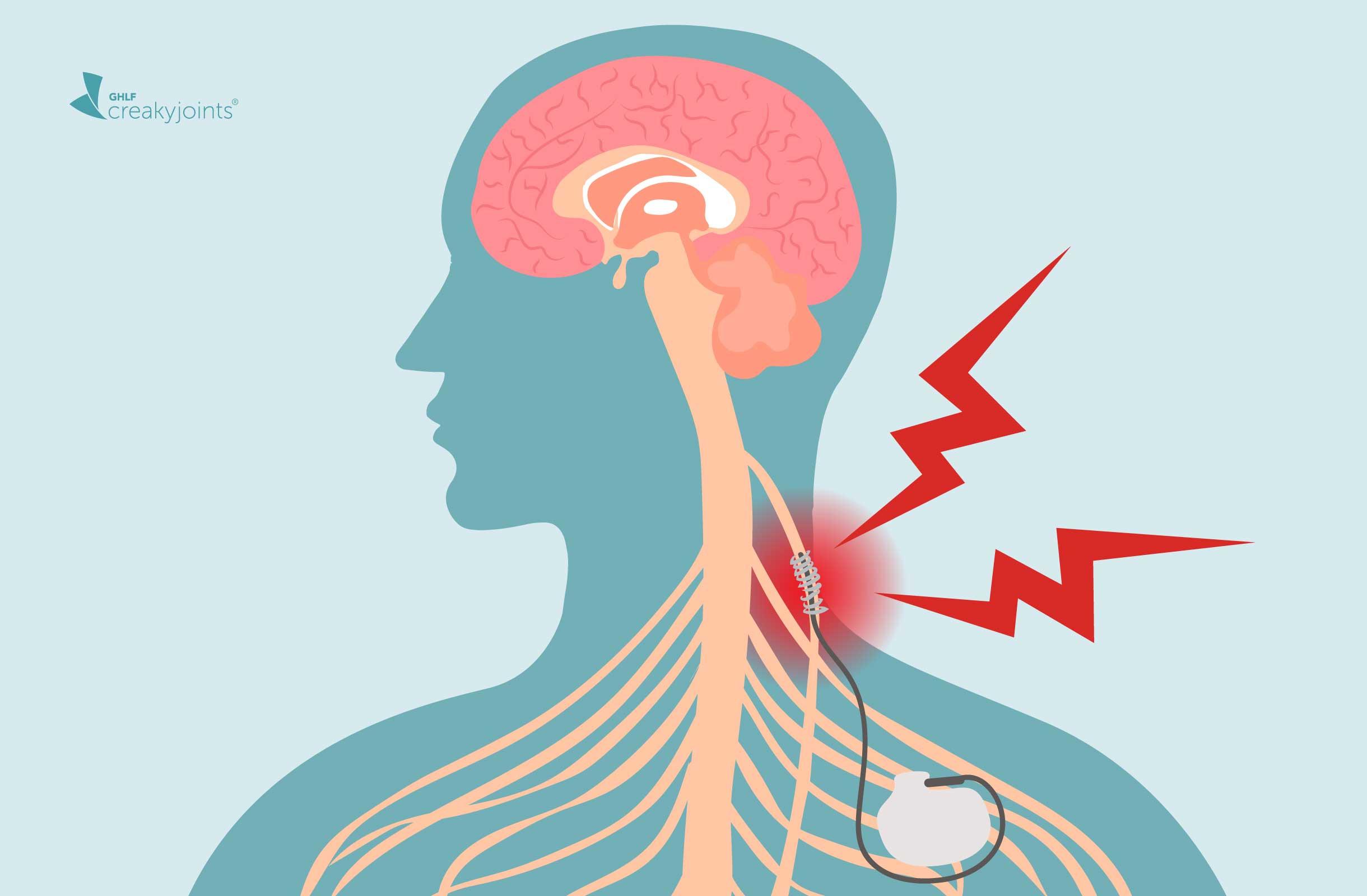 what is vagal nerve stimulation