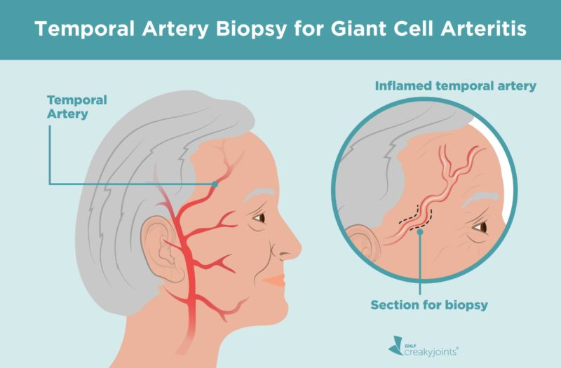 Temporal Artery Biopsy for Giant Cell Arteritis