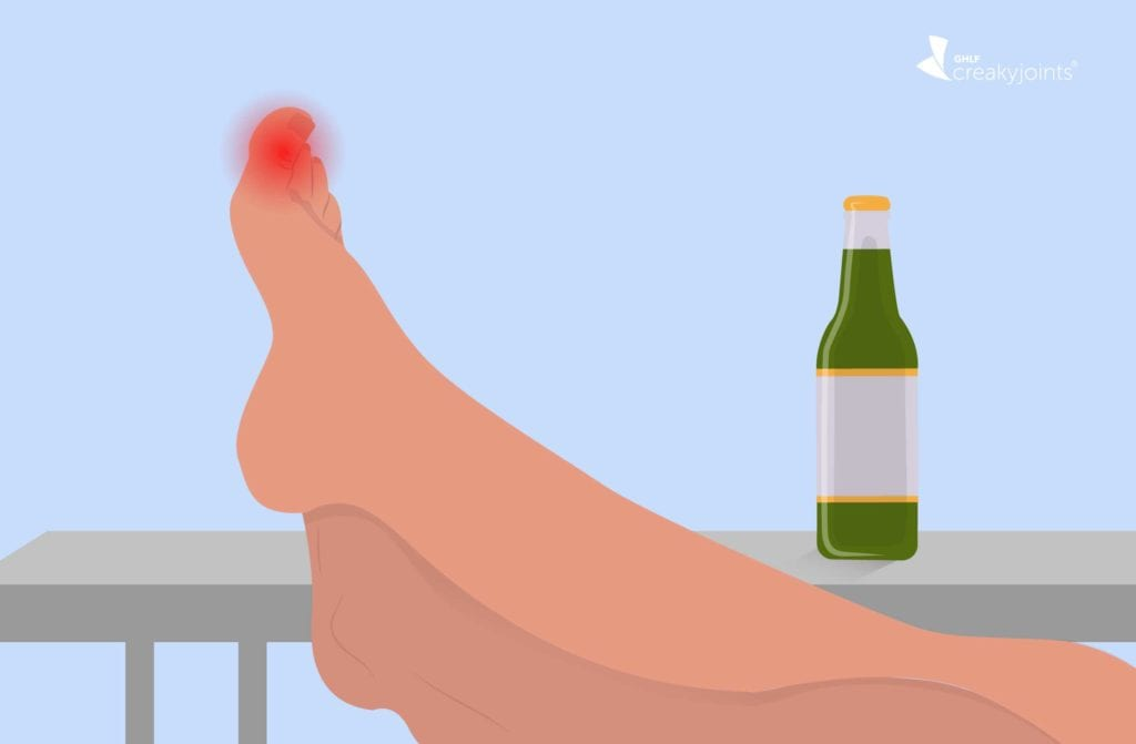The Link Between Alcohol And Gout Does Drinking Alcohol Affect Gout