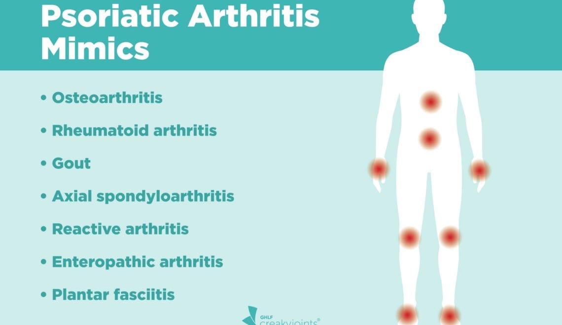Psoriatic Arthritis Misdiagnose