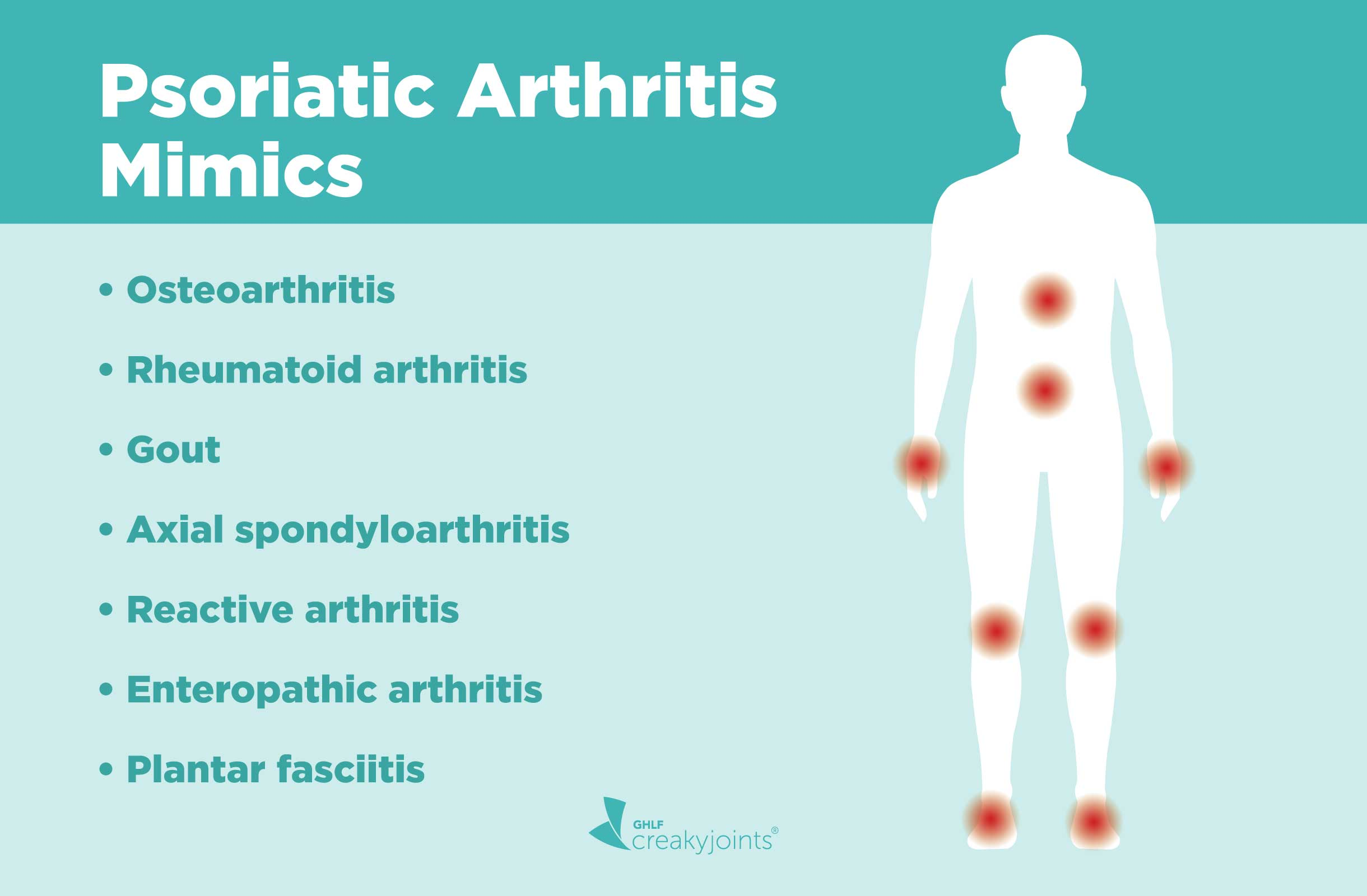 Psoriatic Arthritis Misdiagnosis Diseases Psa Can Be Mistaken For