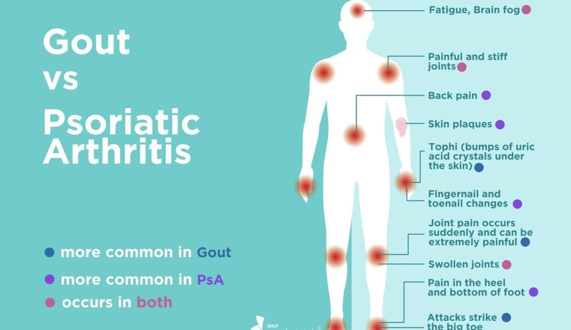 Gout vs Psoriatic Arthritis