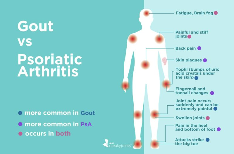 Gout vs Psoriatic Arthritis