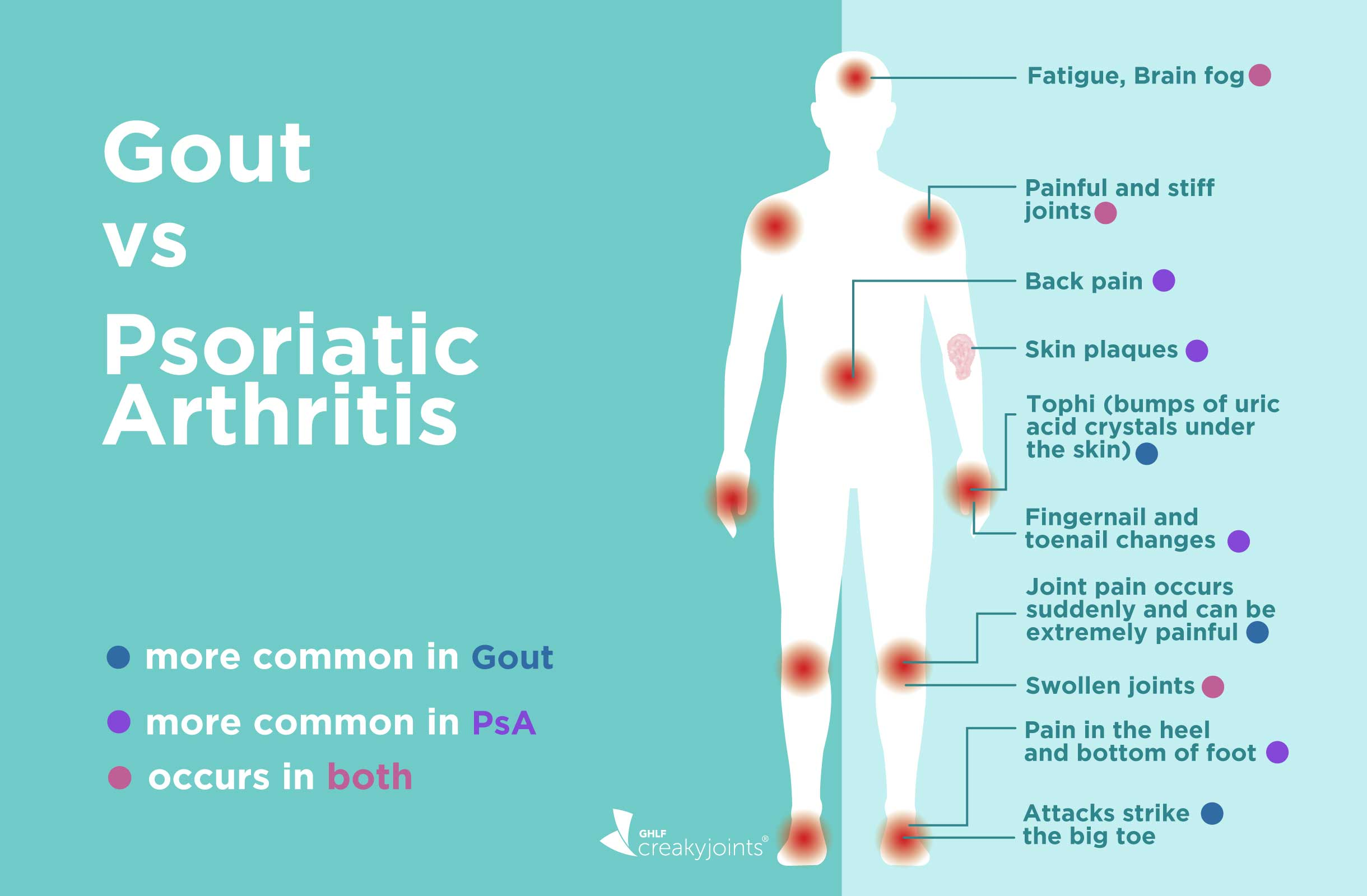 Gout Vs Psoriatic Arthritis Differences In Symptoms And Treatments