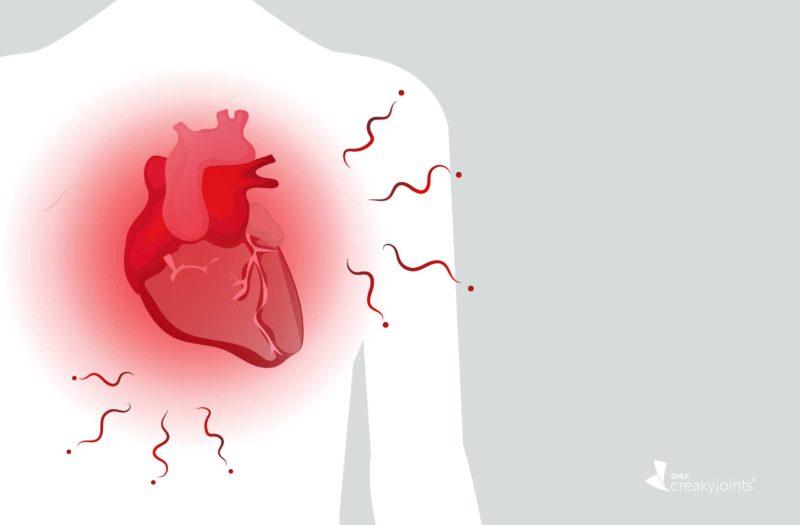 Heart Inflammation Arthritis