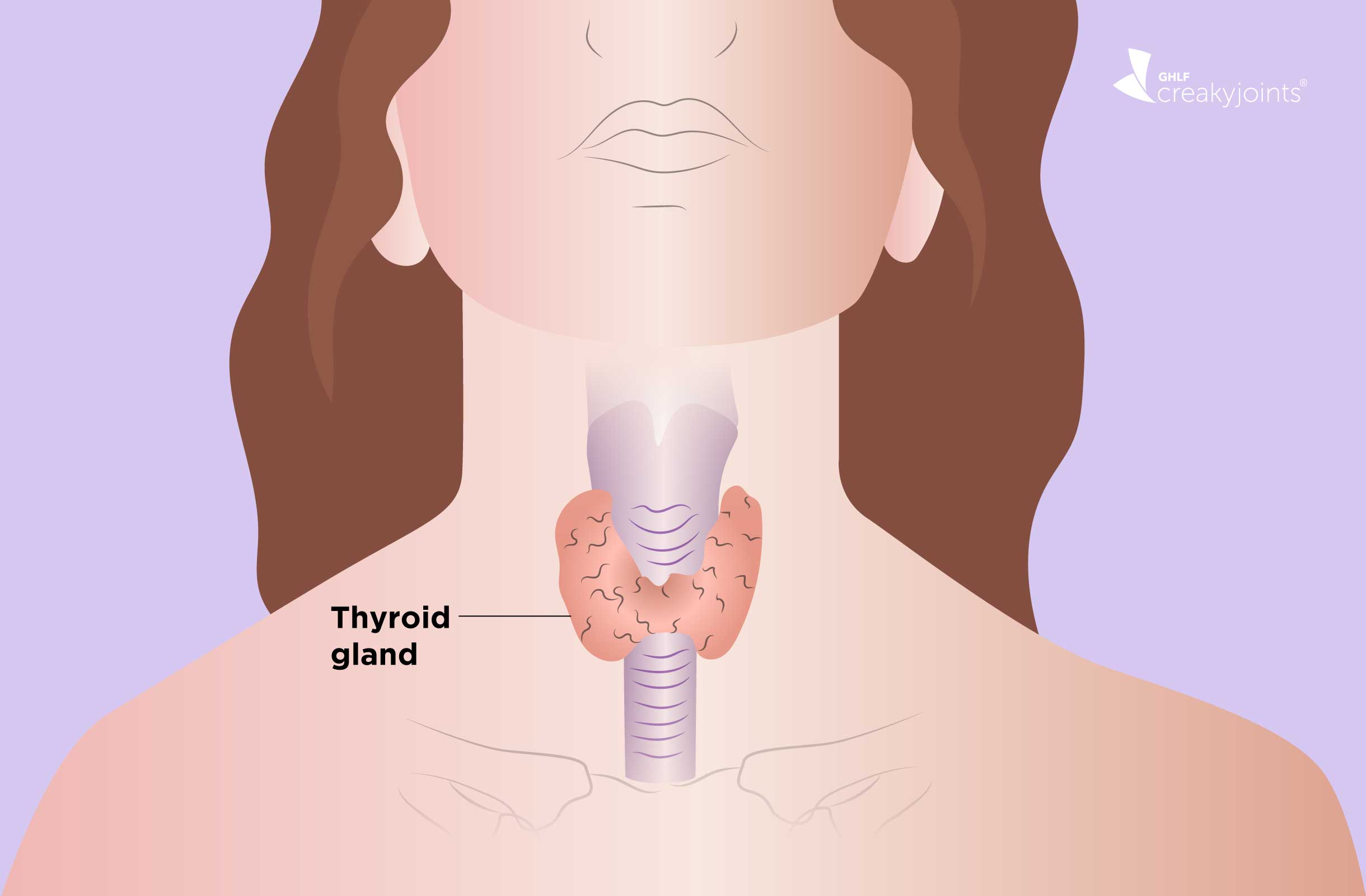 Hypothyroidism And Arthritis Understanding The Link