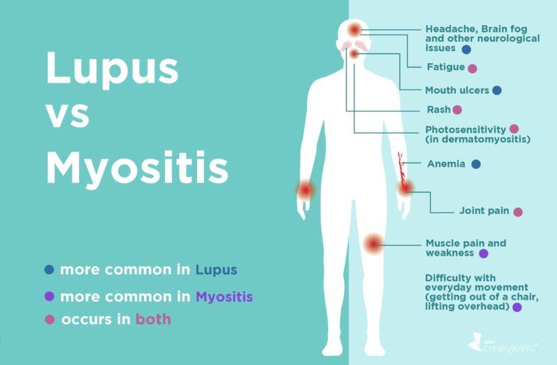 Lupus vs. Myositis
