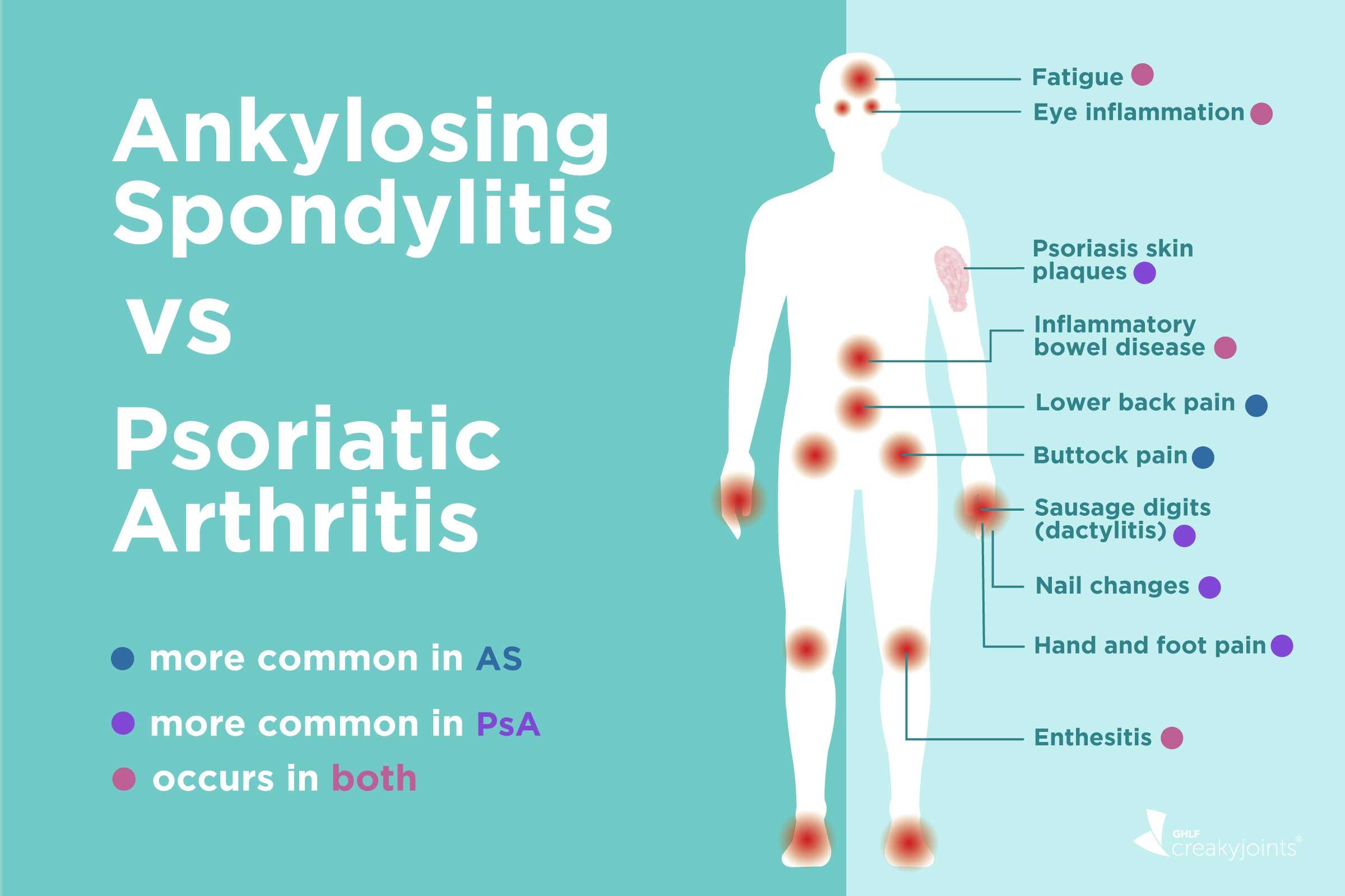 is psoriatic arthritis an inflammatory disease)