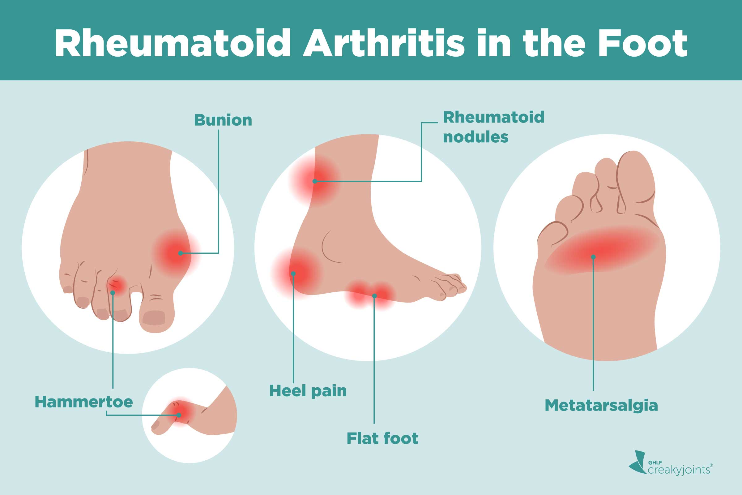 Rheumatoid Arthritis In The Feet Symptoms And Treatments