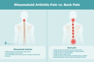 Rheumatoid Arthritis Pain vs. Back Pain