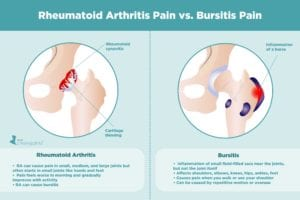 Rheumatoid Arthritis Pain vs. Bursitis Pain