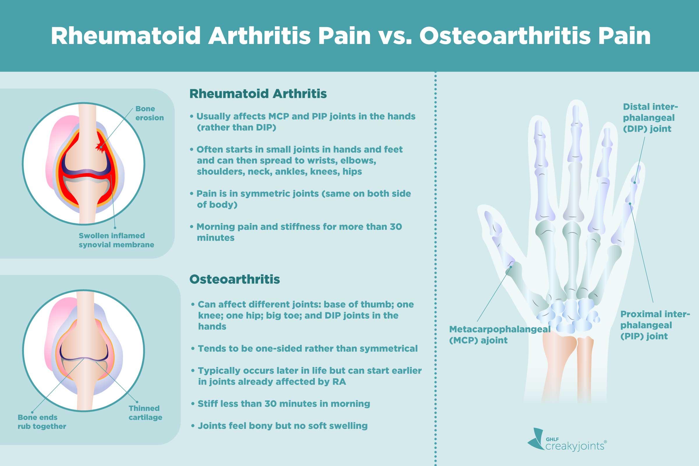 27+ Which is worse rheumatoid arthritis or osteoporosis ideas